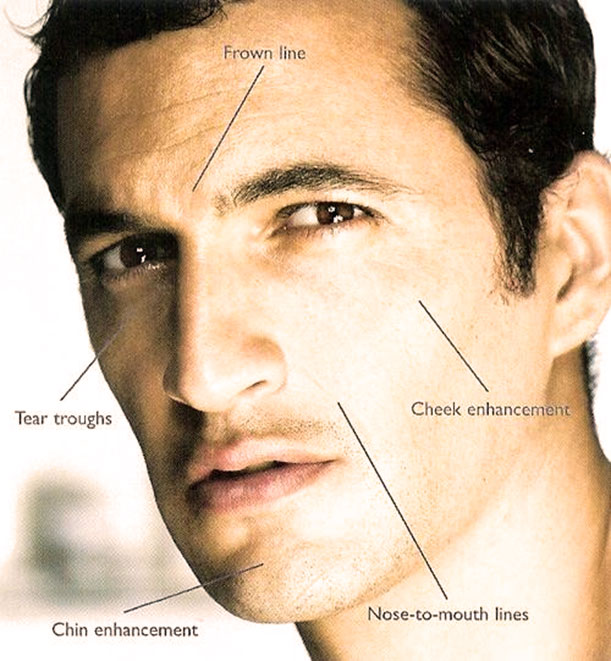 Range of options available in Anti Wrinkle and Filler Clinic